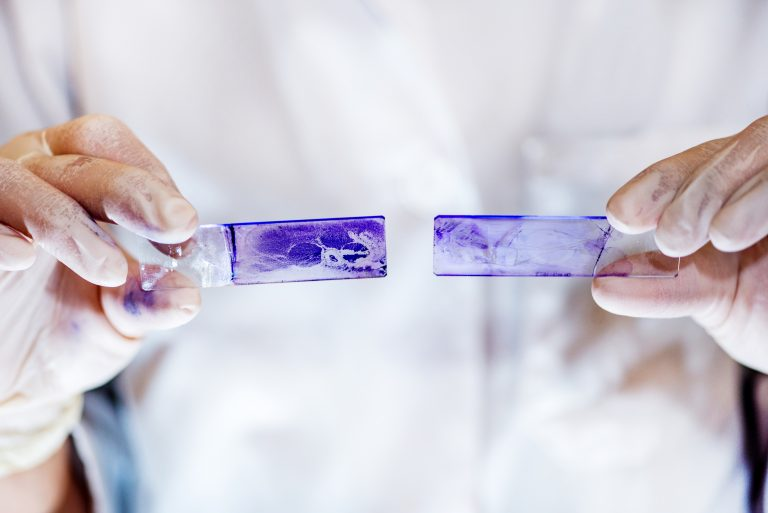 Microbiology laboratory work, comparing results